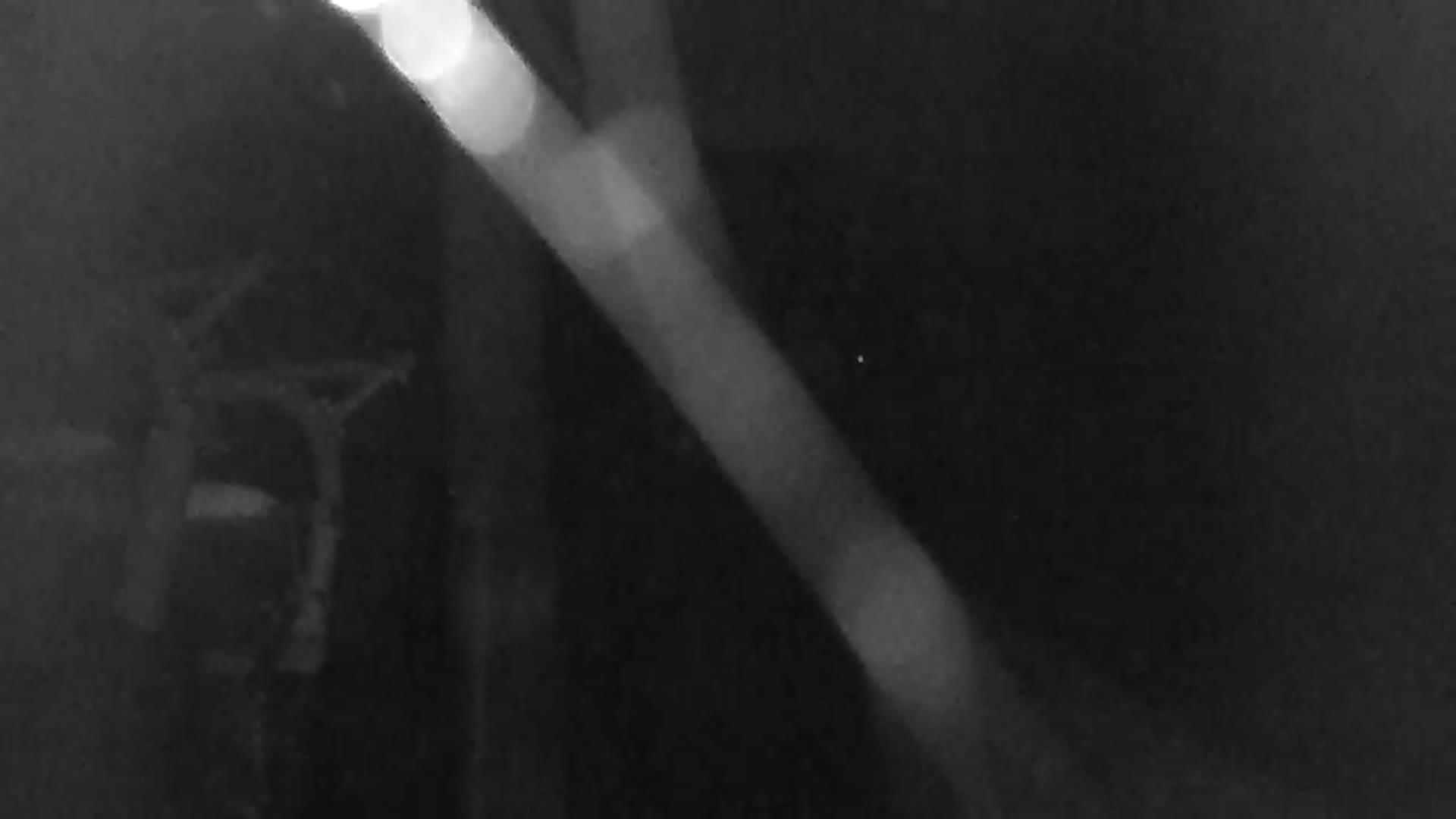 Webcam Skigebiet Czarna Gora cam 3 - Glatzer Schneegebirge